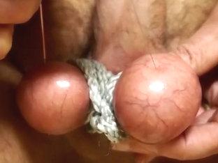 Acupuncture cum shot