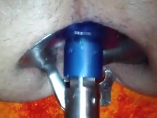 speculum machine fuck