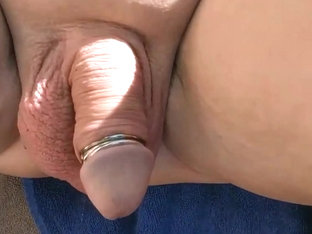 Close up from my extreme anal gape and prolapse