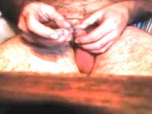 Catheter insertion with cum part 1