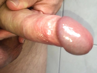 My foreskin and cockhead 01.04.2016