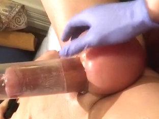Pumping saline balls